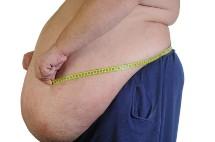 huge protruding stomach